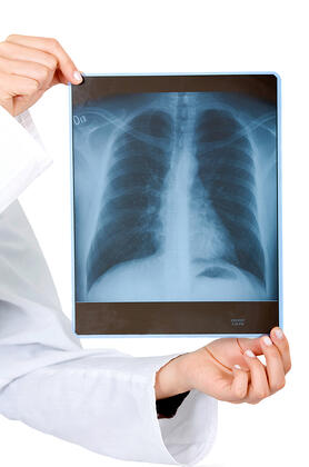 xray held by hands isolated over a white background